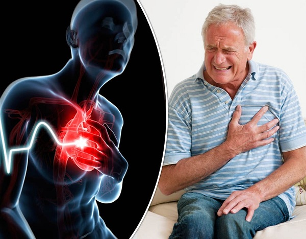 Đông trùng hạ thảo giúp phòng ngừa bệnh xơ vữa động mạch
