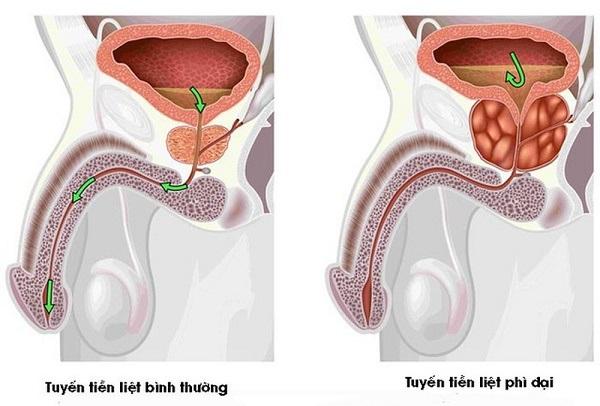 đông trùng hạ thảo chữa bệnh tiền liệt tuyến
