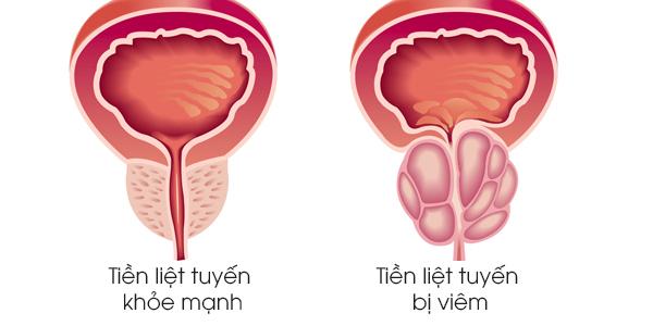 viêm tiền liệt tuyến